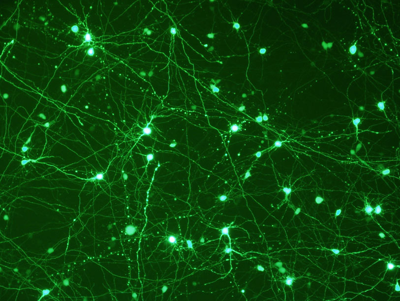 Neurons transfected with Viafect reagent 12644-W