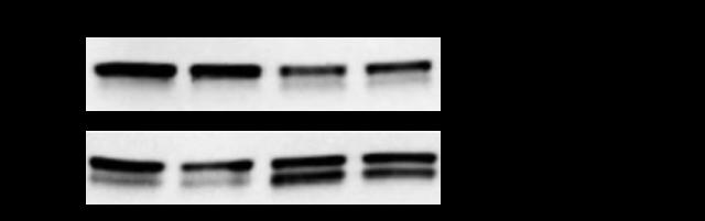 measure lc3i to lc3ii conversion protein blotting autophagosome