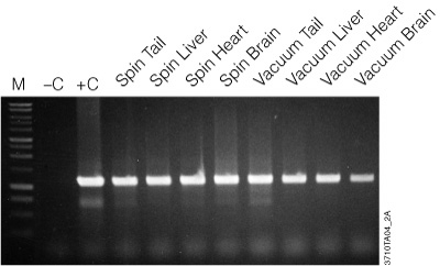 Amplification of genomic DNA purified using the Wizard SV kit.
